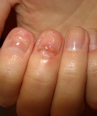 фото онихомикоз ногтей