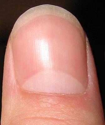 как выглядят здоровые ногти на руках фото